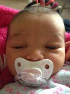 constatation d'une déviation sur le visage d'un bébé due à une plagiocéphalie